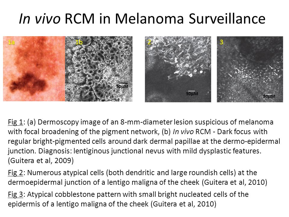 In vivo RCM in Melanoma Surveillance Fig 1: (a) Dermoscopy image of an 8-mm-diameter lesion suspicious of melanoma with focal broadening of the pigment network, (b) In vivo RCM - Dark focus with regular bright-pigmented cells around dark dermal papillae at the dermo-epidermal junction.
