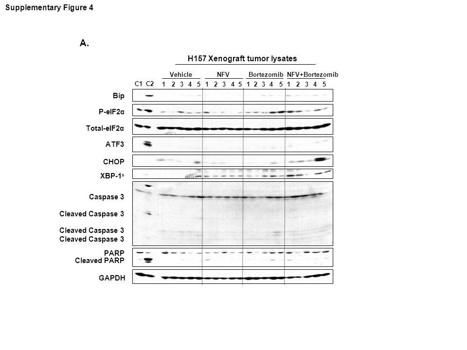 P-eIF2α ATF3 2435 Vehicle NFV GAPDH 1 Bortezomib CHOP C1 PARP C2 Bip Total-eIF2α XBP-1 s Cleaved PARP Caspase 3 Cleaved Caspase 3 243512435124351 NFV+Bortezomib H157 Xenograft tumor lysates Supplementary Figure 4 A.