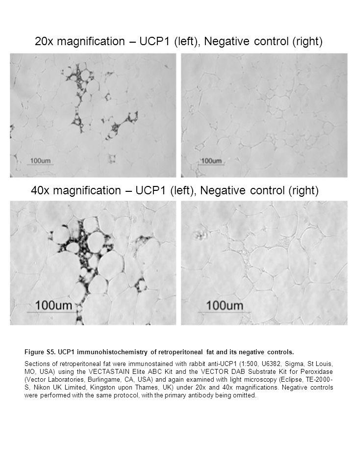 20x magnification – UCP1 (left), Negative control (right) 40x magnification – UCP1 (left), Negative control (right) Figure S5.