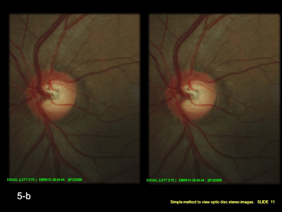 Simple method to view optic disc stereo-images. SLIDE 11 5-b