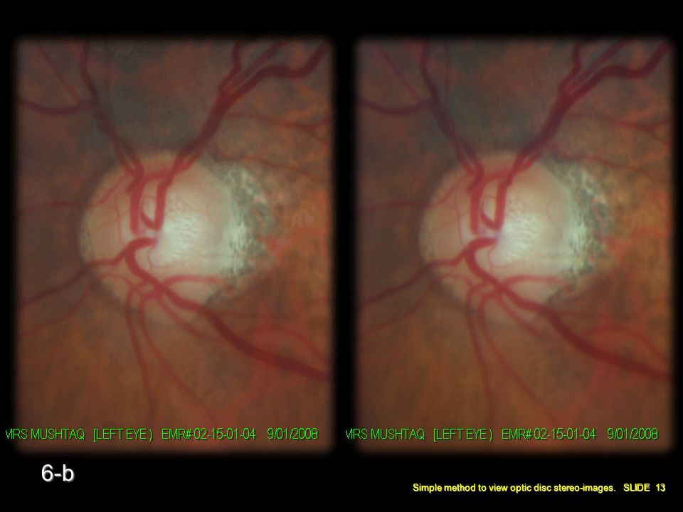 Simple method to view optic disc stereo-images. SLIDE 13 6-b