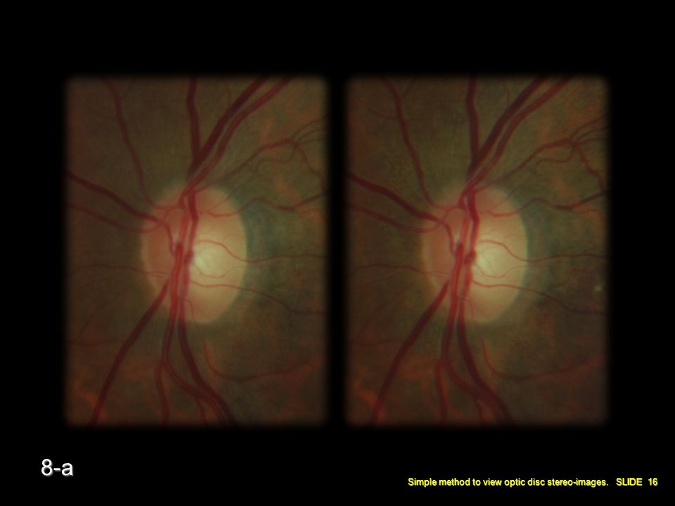 Simple method to view optic disc stereo-images. SLIDE 16 8-a