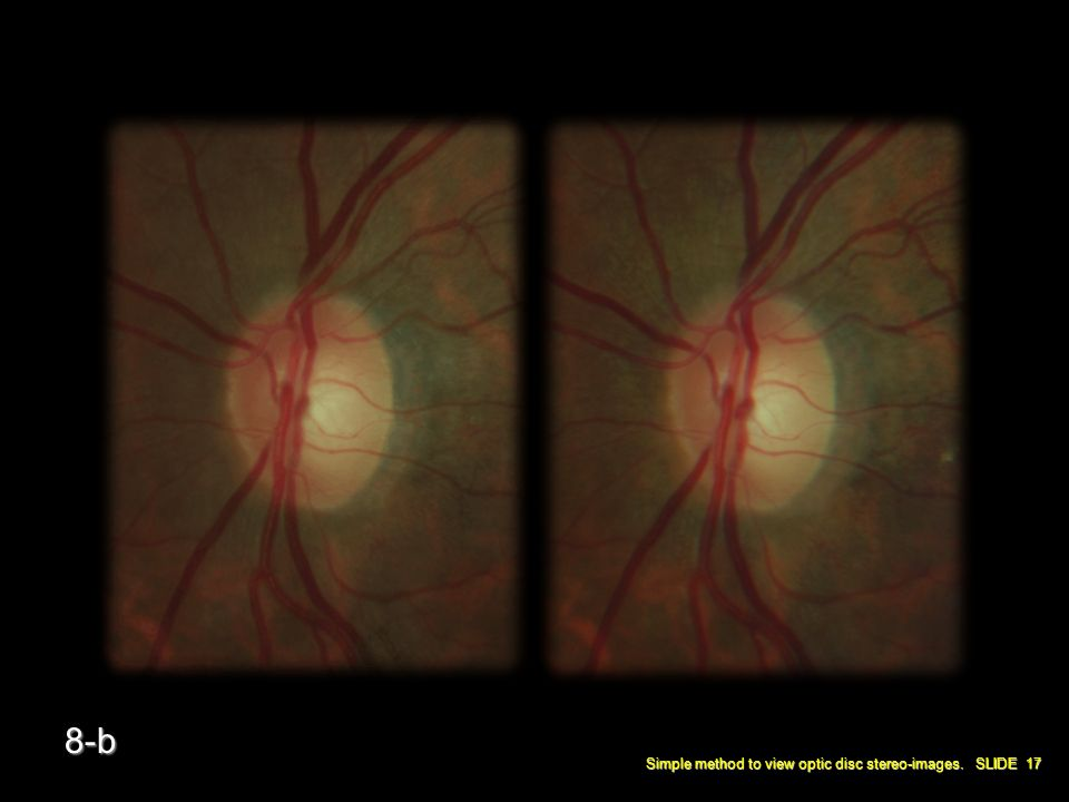 Simple method to view optic disc stereo-images. SLIDE 17 8-b