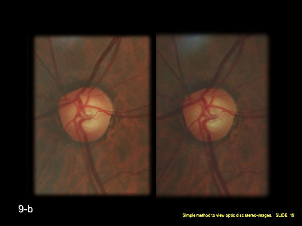 Simple method to view optic disc stereo-images. SLIDE 19 9-b