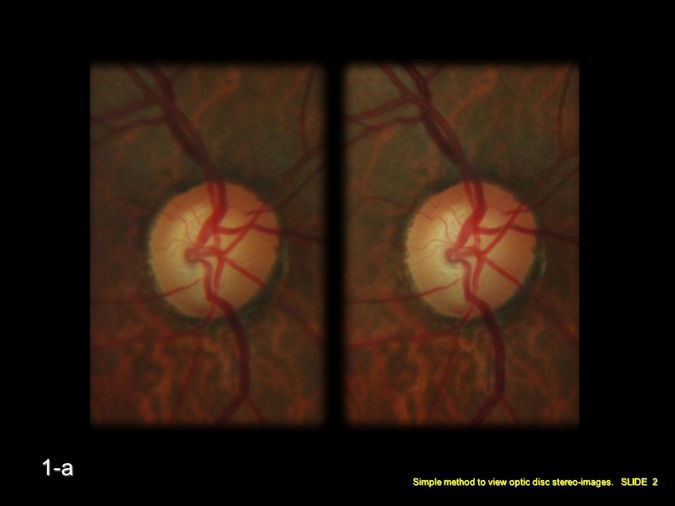 Simple method to view optic disc stereo-images. SLIDE 2 1-a