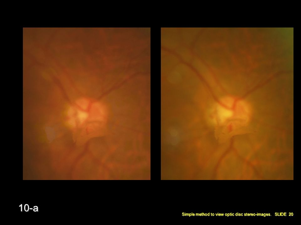 Simple method to view optic disc stereo-images. SLIDE 20 10-a