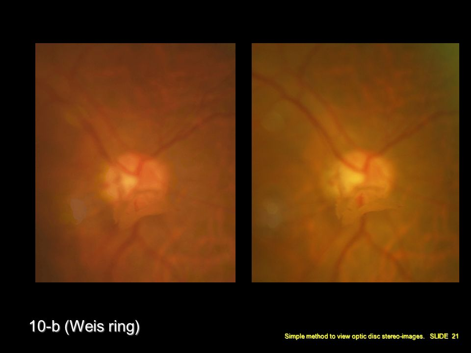 Simple method to view optic disc stereo-images. SLIDE 21 10-b (Weis ring)