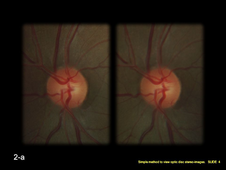Simple method to view optic disc stereo-images. SLIDE 4 2-a