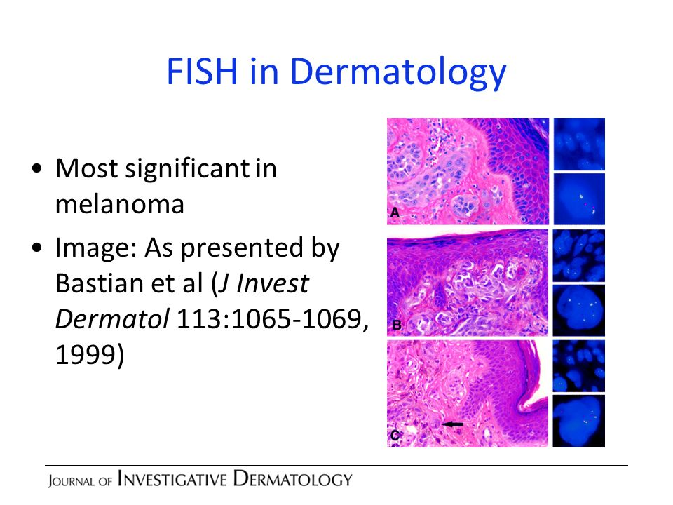 FISH in Dermatology Most significant in melanoma Image: As presented by Bastian et al (J Invest Dermatol 113:1065-1069, 1999)