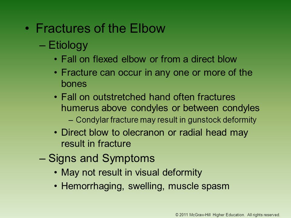 Fractures of the Elbow –Etiology Fall on flexed elbow or from a direct blow Fracture can occur in any one or more of the bones Fall on outstretched ha