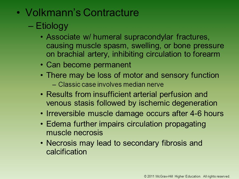Volkmanns Contracture –Etiology Associate w/ humeral supracondylar fractures, causing muscle spasm, swelling, or bone pressure on brachial artery, inh