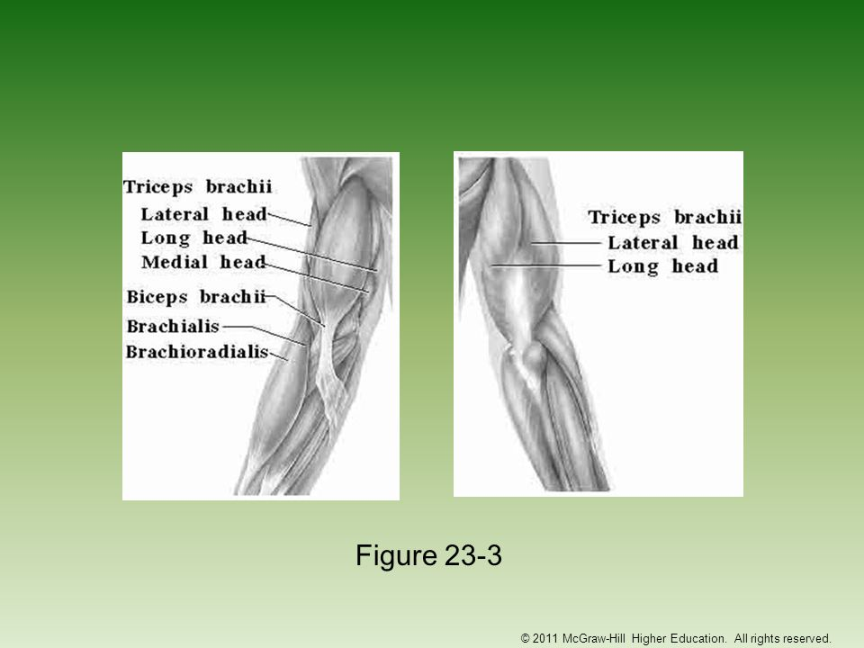 Fractures of the Elbow –Etiology Fall on flexed elbow or from a direct blow Fracture can occur in any one or more of the bones Fall on outstretched hand often fractures humerus above condyles or between condyles –Condylar fracture may result in gunstock deformity Direct blow to olecranon or radial head may result in fracture –Signs and Symptoms May not result in visual deformity Hemorrhaging, swelling, muscle spasm © 2011 McGraw-Hill Higher Education.