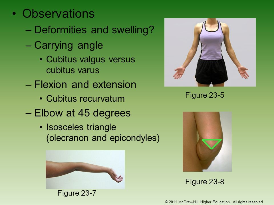 Little League Elbow (continued) –Signs and Symptoms Onset is slow; slight flexion contracture, including tight anterior joint capsule and weakness in triceps Patient may complain of locking or catching sensation Decreased ROM of forearm pronation and supination –Management RICE, NSAIDs and analgesics Throwing stops until pain resolved and full ROM is regained Gentle stretching and triceps strengthening Throwing under supervision w/ good technique to prevent recurrence © 2011 McGraw-Hill Higher Education.