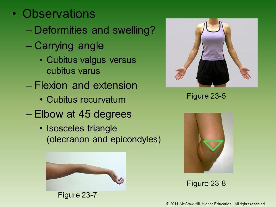Observations –Deformities and swelling? –Carrying angle Cubitus valgus versus cubitus varus –Flexion and extension Cubitus recurvatum –Elbow at 45 deg