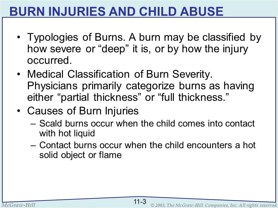 McGraw-Hill © 2003, The McGraw-Hill Companies, Inc. All rights reserved. BURN INJURIES AND CHILD ABUSE Typologies of Burns. A burn may be classified b