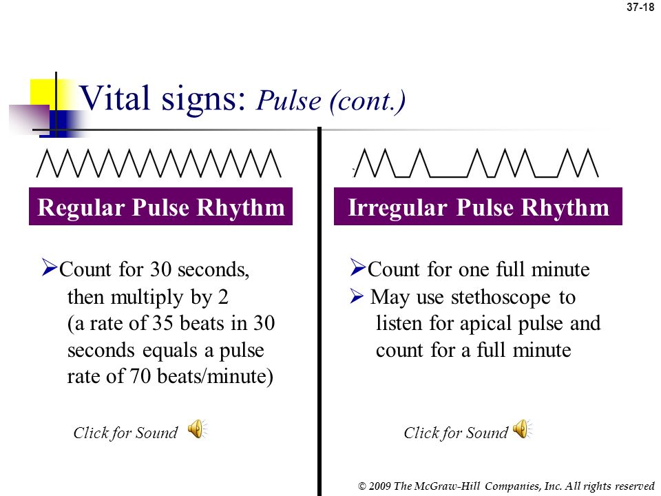 37-17 © 2009 The McGraw-Hill Companies, Inc. All rights reserved Vital Signs: Pulse (cont.) Locate pulse by pressing lightly with index and middle fin