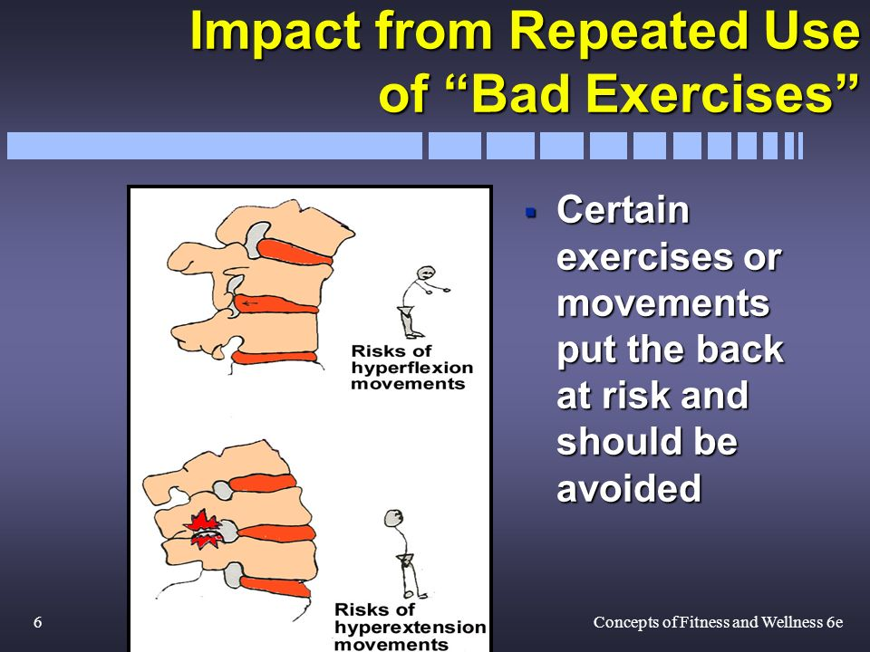 6Concepts of Fitness and Wellness 6e Impact from Repeated Use of Bad Exercises Certain exercises or movements put the back at risk and should be avoided Certain exercises or movements put the back at risk and should be avoided