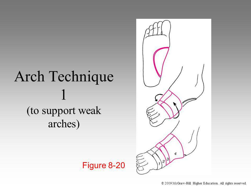 © 2009 McGraw-Hill Higher Education. All rights reserved. Arch Technique 1 (to support weak arches) Figure 8-20
