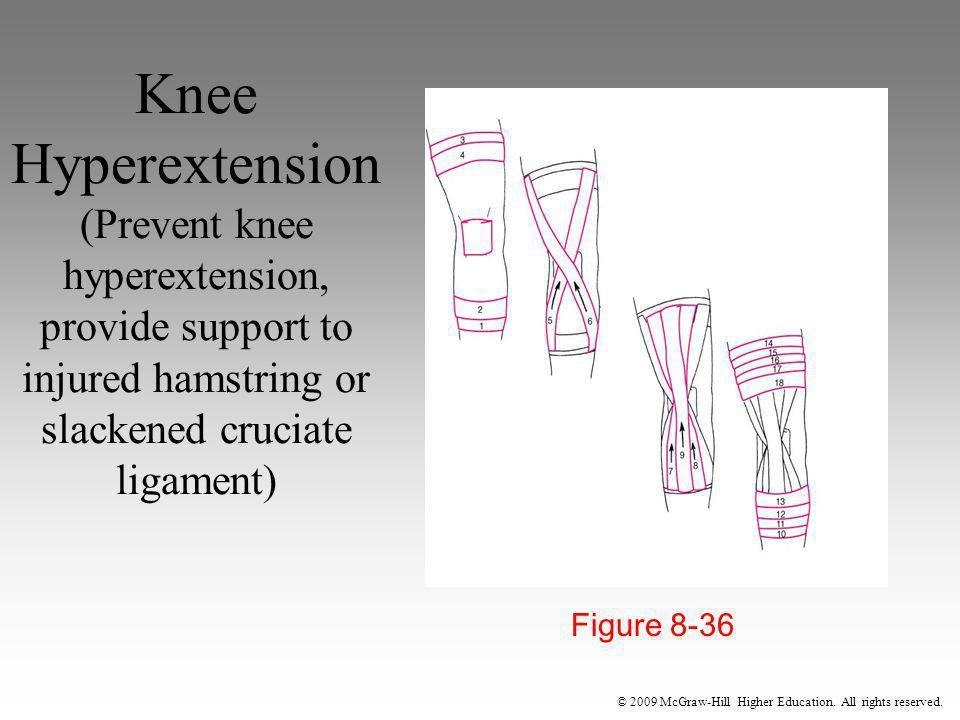 © 2009 McGraw-Hill Higher Education. All rights reserved. Knee Hyperextension (Prevent knee hyperextension, provide support to injured hamstring or sl