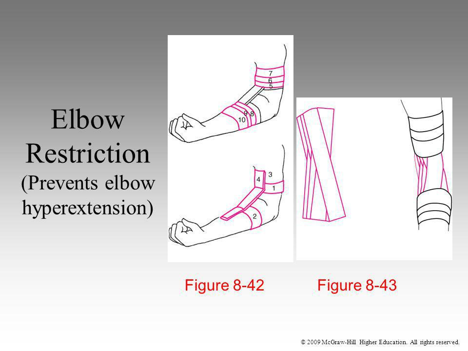 © 2009 McGraw-Hill Higher Education. All rights reserved. Elbow Restriction (Prevents elbow hyperextension) Figure 8-42 Figure 8-43