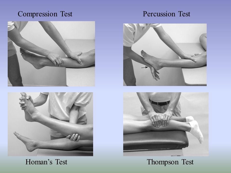 Compression TestPercussion Test Homans TestThompson Test