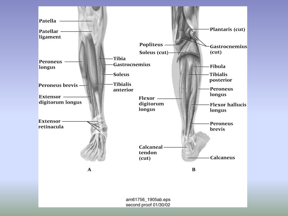 Severity of sprains is graded (1-3) With inversion sprains the foot is forcefully inverted or occurs when the foot comes into contact w/ uneven surfaces