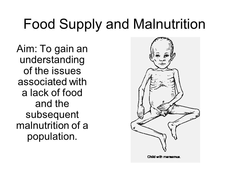 Food Supply and Malnutrition Aim: To gain an understanding of the issues associated with a lack of food and the subsequent malnutrition of a population.