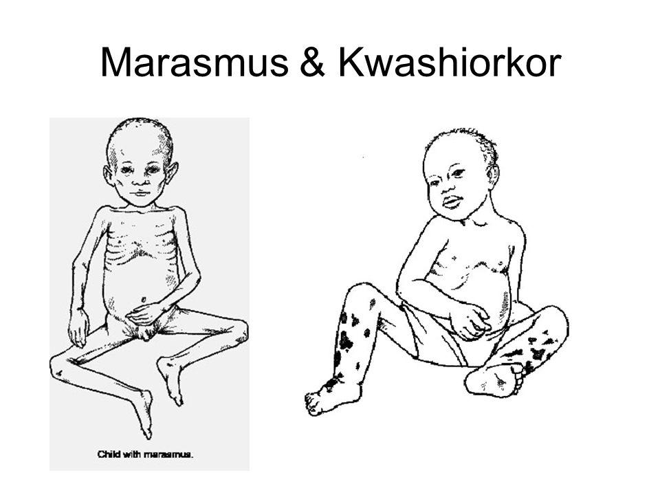 Marasmus & Kwashiorkor