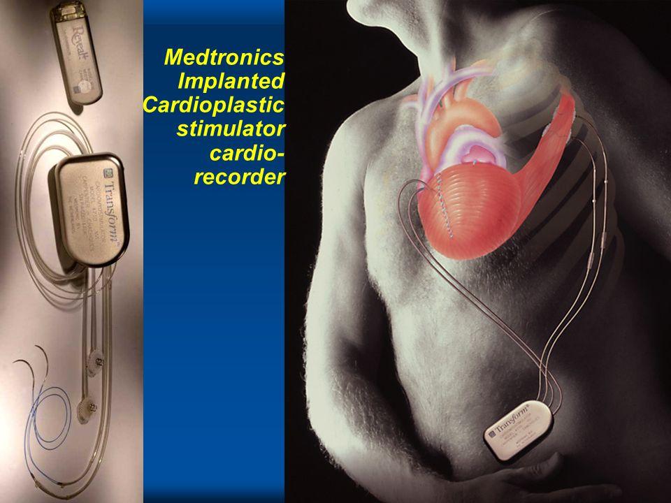 The Tech Medtronics Implanted Cardioplastic stimulator cardio- recorder