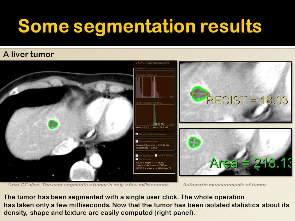 A liver tumor The tumor has been segmented with a single user click.