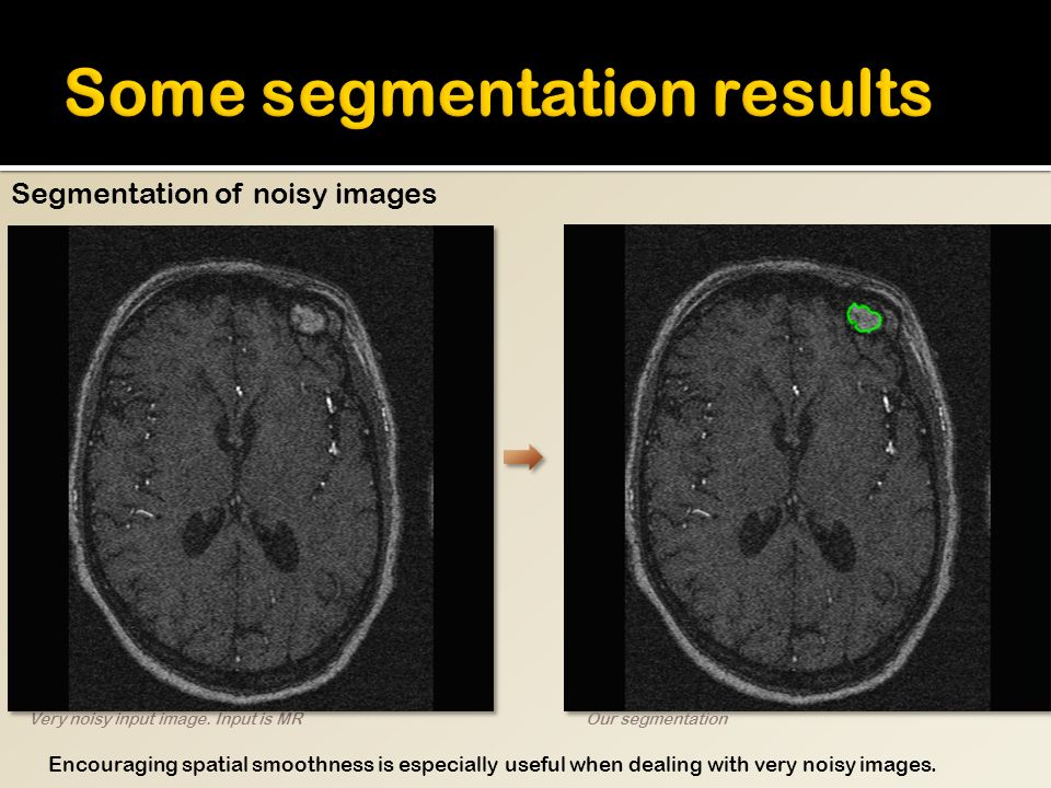 Very noisy input image. Input is MROur segmentation Segmentation of noisy images Encouraging spatial smoothness is especially useful when dealing with