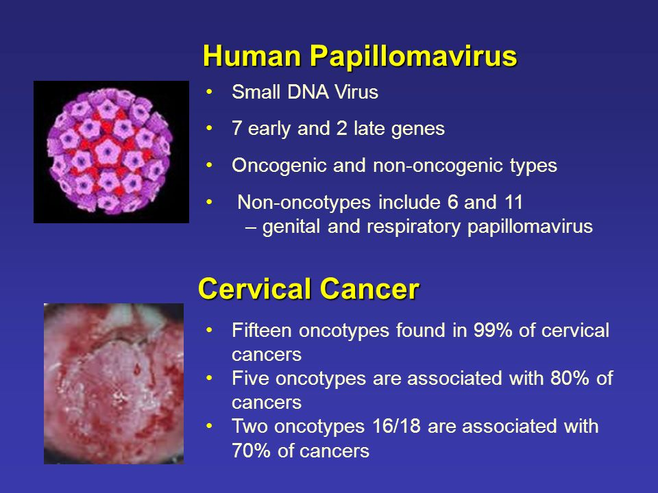 Human Papillomavirus Small DNA Virus 7 early and 2 late genes Oncogenic and non-oncogenic types Non-oncotypes include 6 and 11 – genital and respirato