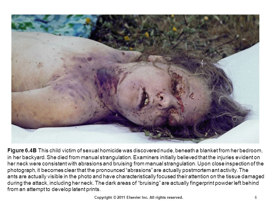 Copyright © 2011 Elsevier Inc. All rights reserved. 6 Figure 6.4B This child victim of sexual homicide was discovered nude, beneath a blanket from her