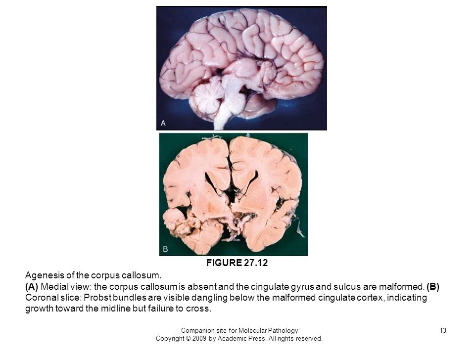 Companion site for Molecular Pathology Copyright © 2009 by Academic Press. All rights reserved. 13 Agenesis of the corpus callosum. (A) Medial view: t