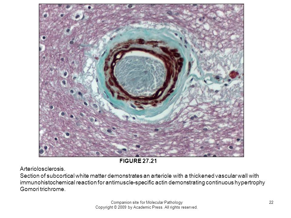 Companion site for Molecular Pathology Copyright © 2009 by Academic Press. All rights reserved. 22 Arteriolosclerosis. Section of subcortical white ma