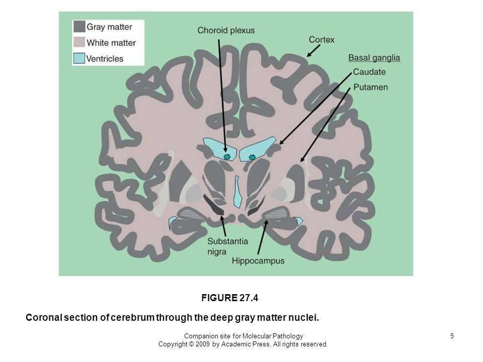 Companion site for Molecular Pathology Copyright © 2009 by Academic Press. All rights reserved. 5 Coronal section of cerebrum through the deep gray ma
