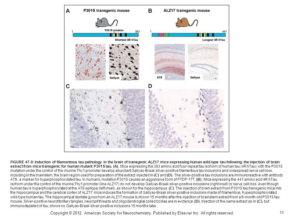11 FIGURE 47-8: Induction of filamentous tau pathology in the brain of transgenic ALZ17 mice expressing human wild-type tau following the injection of