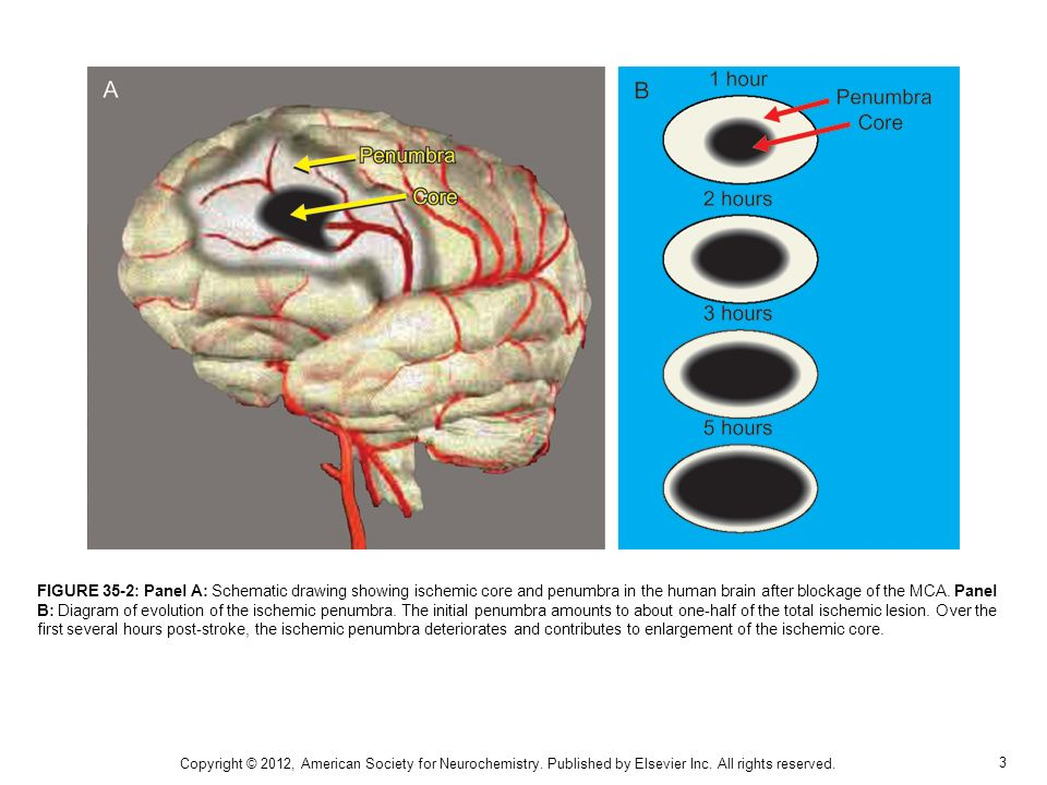 3 FIGURE 35-2: Panel A: Schematic drawing showing ischemic core and penumbra in the human brain after blockage of the MCA. Panel B: Diagram of evoluti