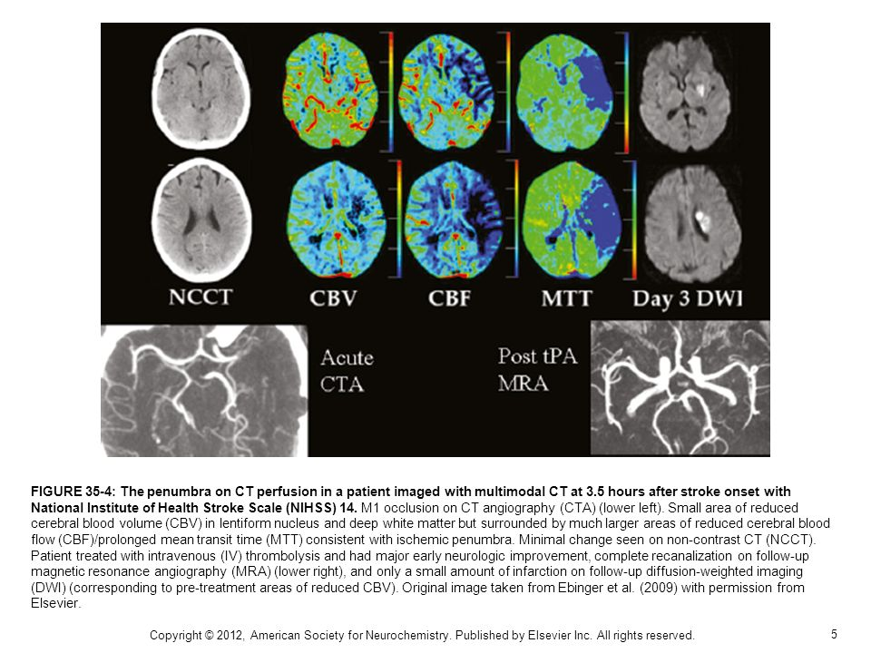 6 FIGURE 35-5: Fluid-attenuated inversion recovery image of magnetic resonance imaging (MRI-FLAIR) and multitracer SPECT images in a patient with subacute left thalamic lacunar infarction without major artery obstruction.