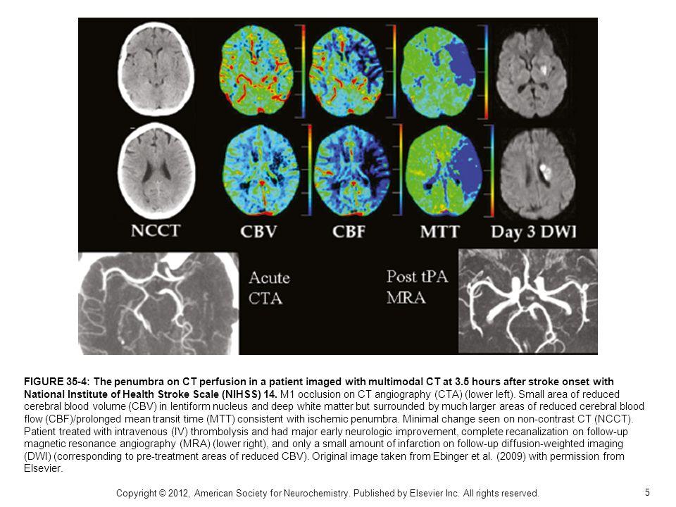 16 Copyright © 2012, American Society for Neurochemistry.