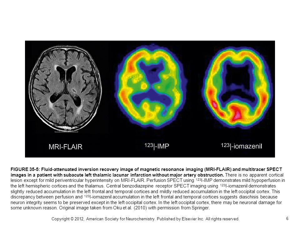 7 FIGURE 35-6: Subacute left hemispheric stroke due to left internal carotid occlusion.