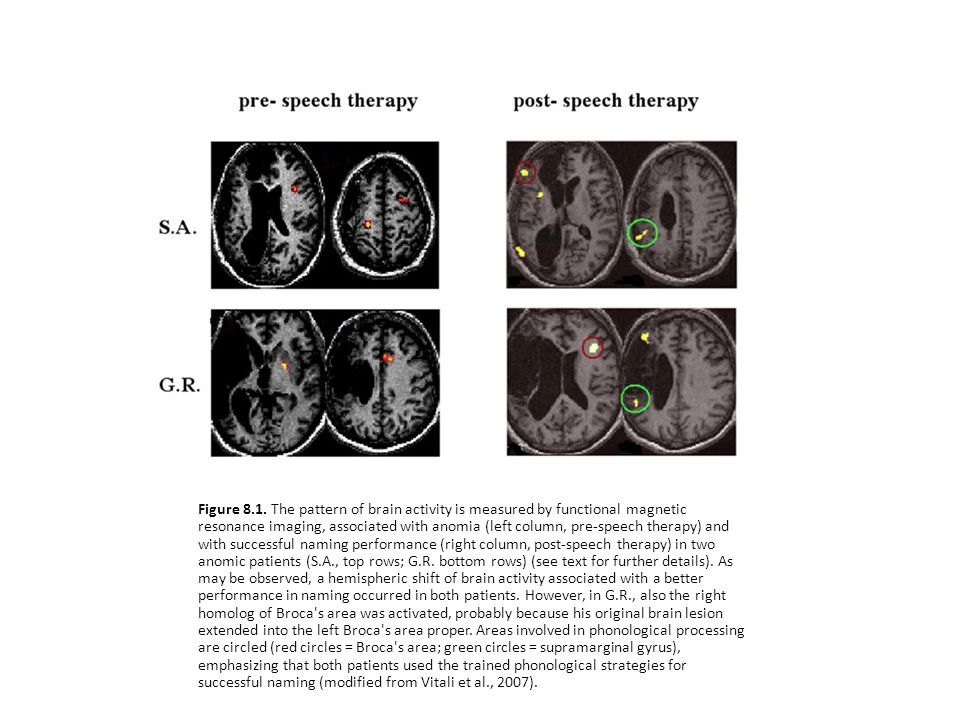 Figure 8.1. The pattern of brain activity is measured by functional magnetic resonance imaging, associated with anomia (left column, pre-speech therap