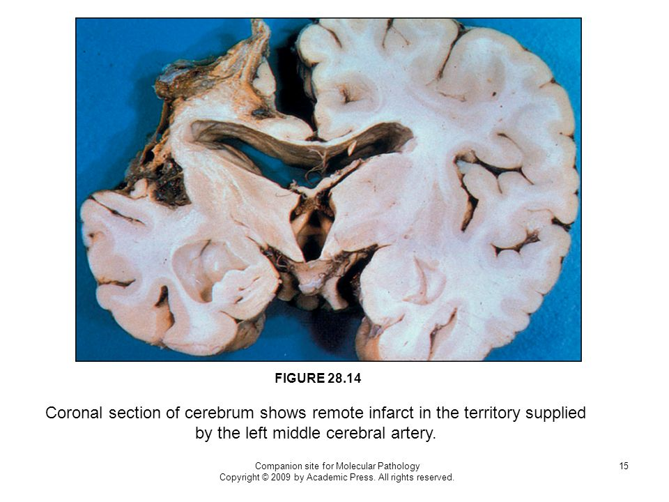 Companion site for Molecular Pathology Copyright © 2009 by Academic Press. All rights reserved. 15 FIGURE 28.14 Coronal section of cerebrum shows remo
