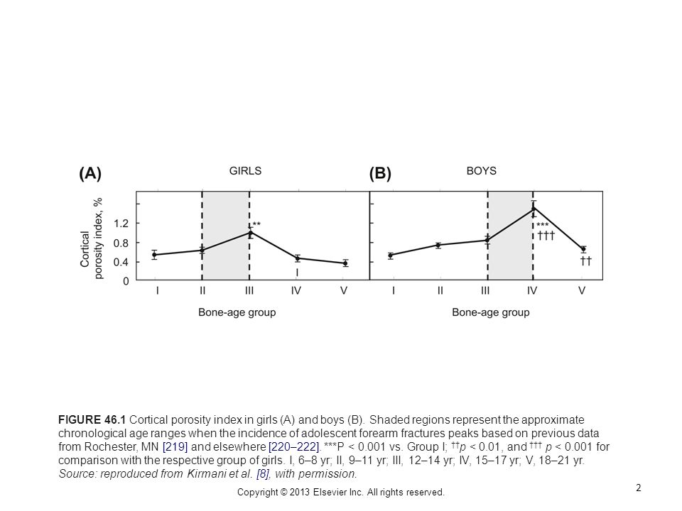 FIGURE 46.1 Cortical porosity index in girls (A) and boys (B). Shaded regions represent the approximate chronological age ranges when the incidence of