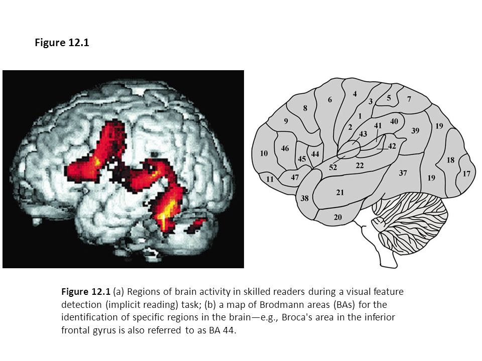 Figure 12.2 Regions of common activation during reading (top row); greater activation in English readers than Italian readers during non- word reading (middle row); and greater activation in Italian readers than English readers regardless of word type (bottom row).