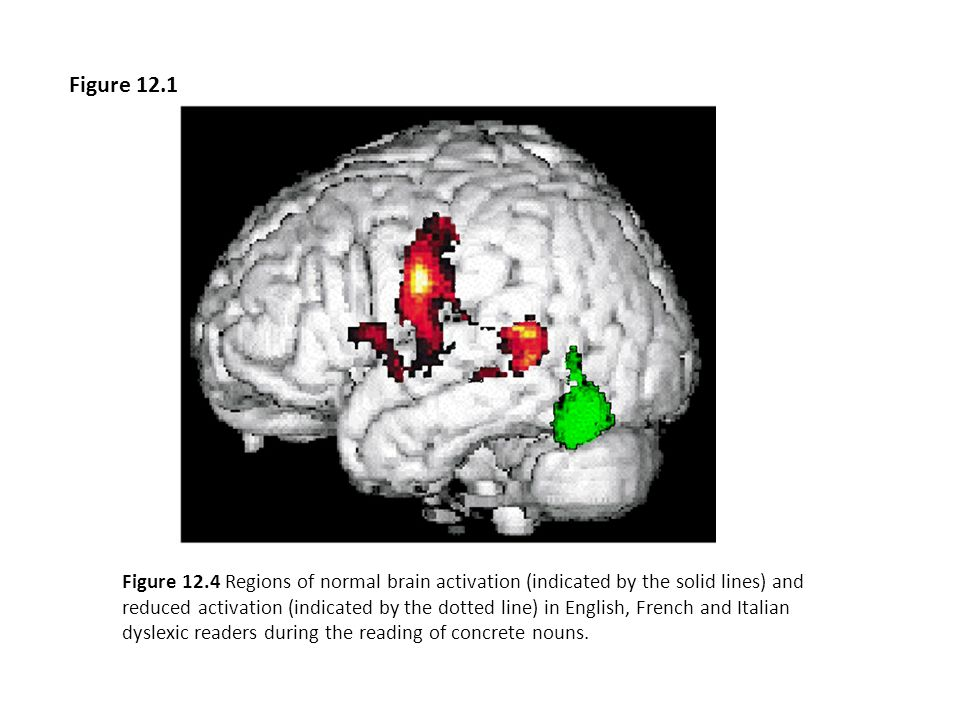 Figure 13.1 Diagram of the human brain showing the four lobar divisions. Figure 13.1