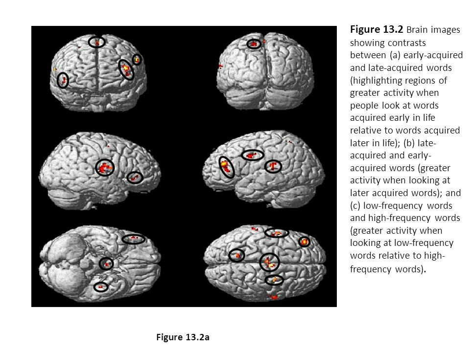 Figure 13.2 Brain images showing contrasts between (a) early-acquired and late-acquired words (highlighting regions of greater activity when people look at words acquired early in life relative to words acquired later in life); (b) late- acquired and early- acquired words (greater activity when looking at later acquired words); and low-frequency words and (c) high-frequency words (greater activity when looking at low-frequency words relative to high- frequency words).