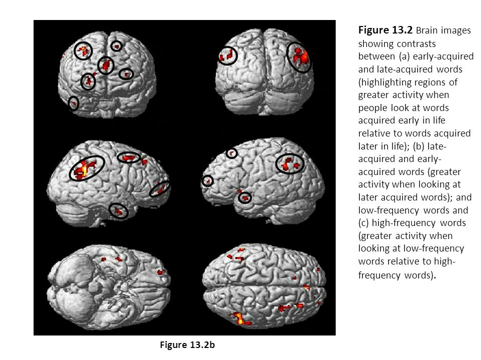 Figure 13.2 Brain images showing contrasts between (a) early-acquired and late-acquired words (highlighting regions of greater activity when people look at words acquired early in life relative to words acquired later in life); (b) late- acquired and early- acquired words (greater activity when looking at later acquired words); and (c) low-frequency words and high-frequency words (greater activity when looking at low-frequency words relative to high- frequency words).