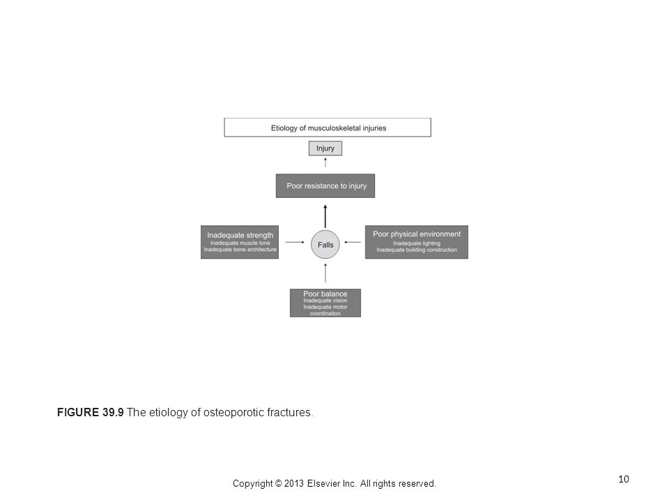 Copyright © 2013 Elsevier Inc. All rights reserved. FIGURE 39.9 The etiology of osteoporotic fractures. 10