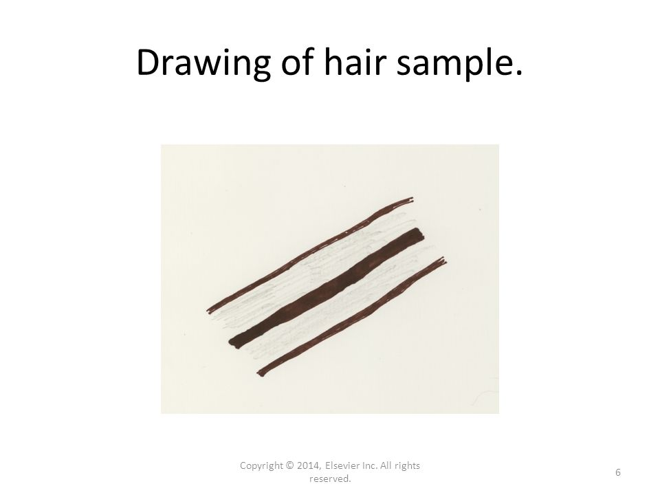 Drawing of hair sample. Copyright © 2014, Elsevier Inc. All rights reserved. 6